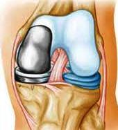 Изображение - Как выглядит эндопротез коленного сустава jointreplacement83